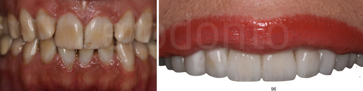 Case 16 | Prosthodontic Award 2015 | Greece