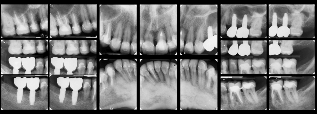 xray after