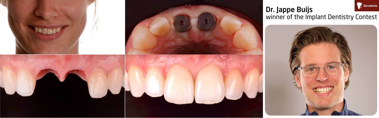 Implant Dentistry Contest – contest #2