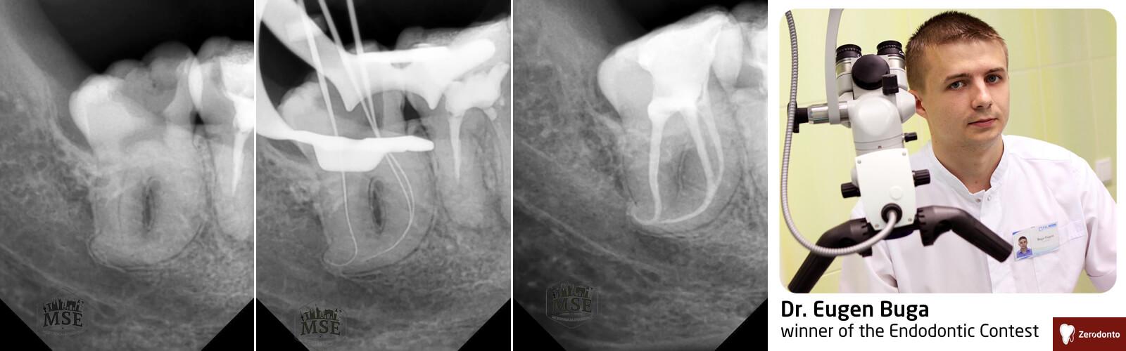 Endodontic Contest – contest #1