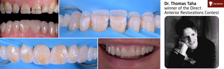 Direct Anterior Restorations Contest – contest #4