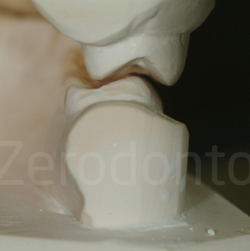 increase of VDO, vailati, 3-step technique