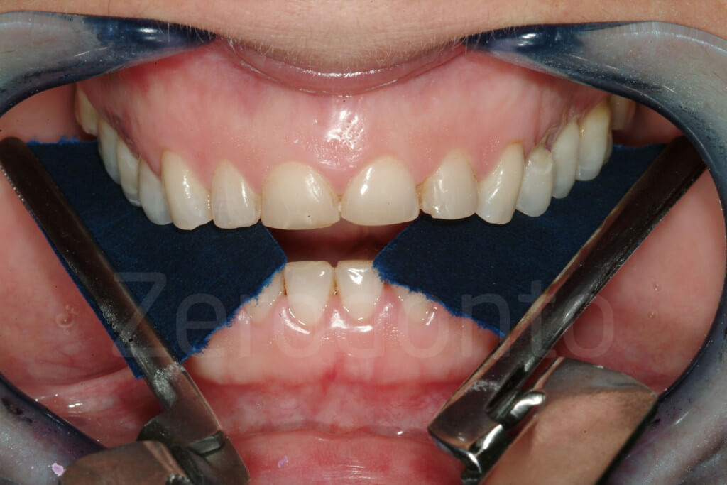 occlusal adjustments
