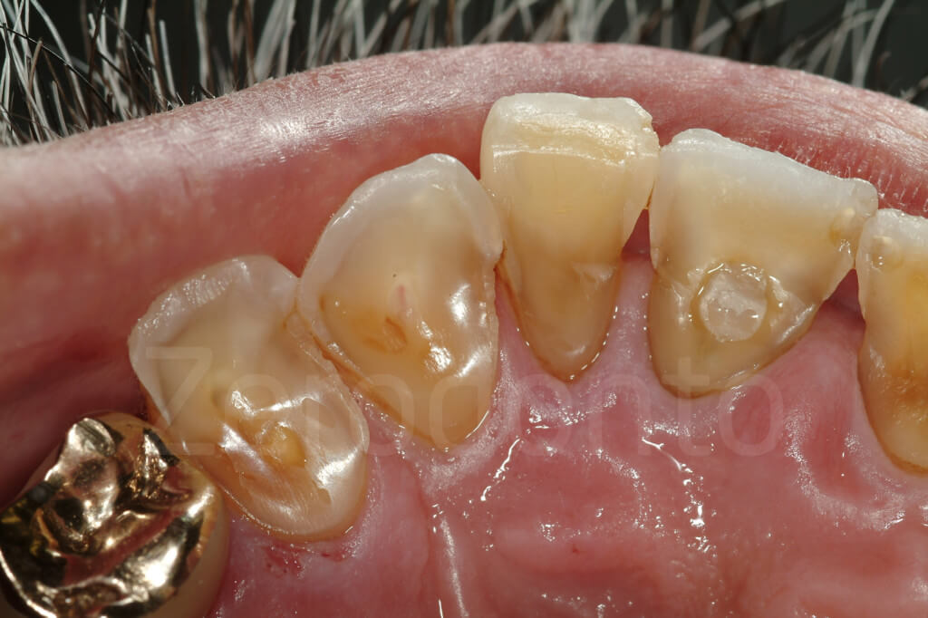 severe palatal damage