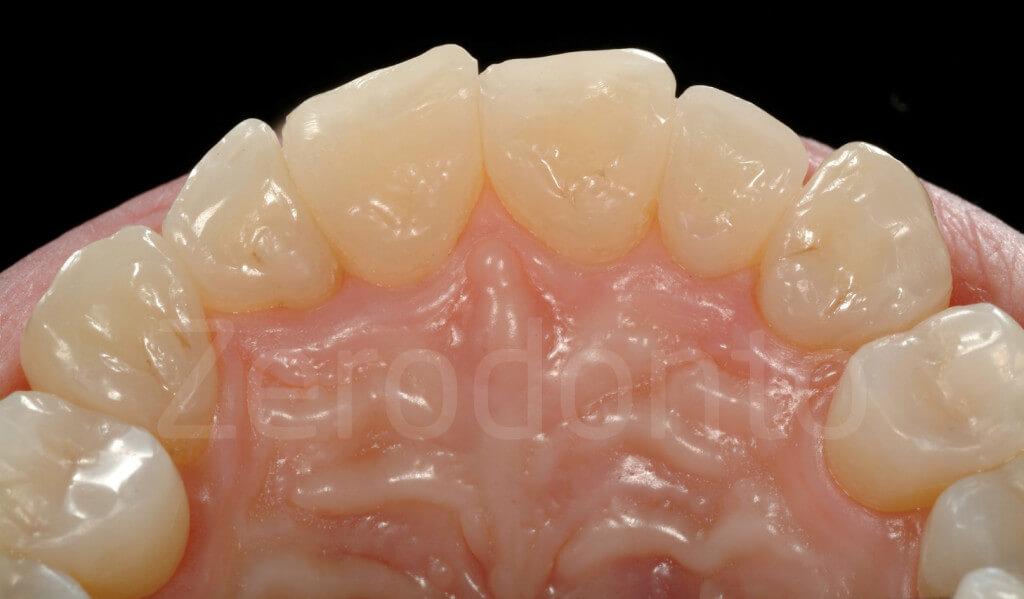 composite palatal veneers