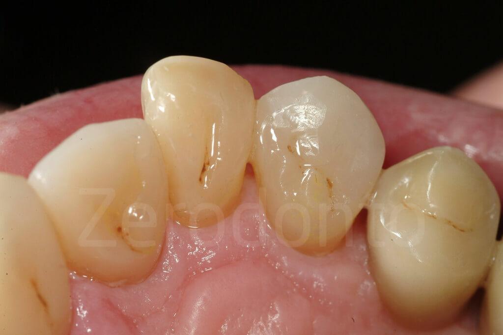 composite palatal veneers, vailati, 3-step