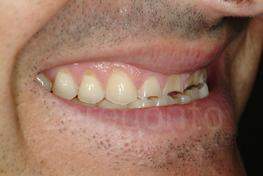 incisal edges' damage