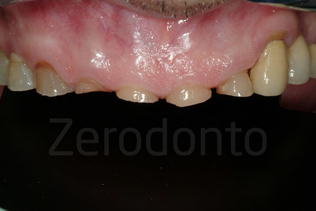 incisal edges breaking down