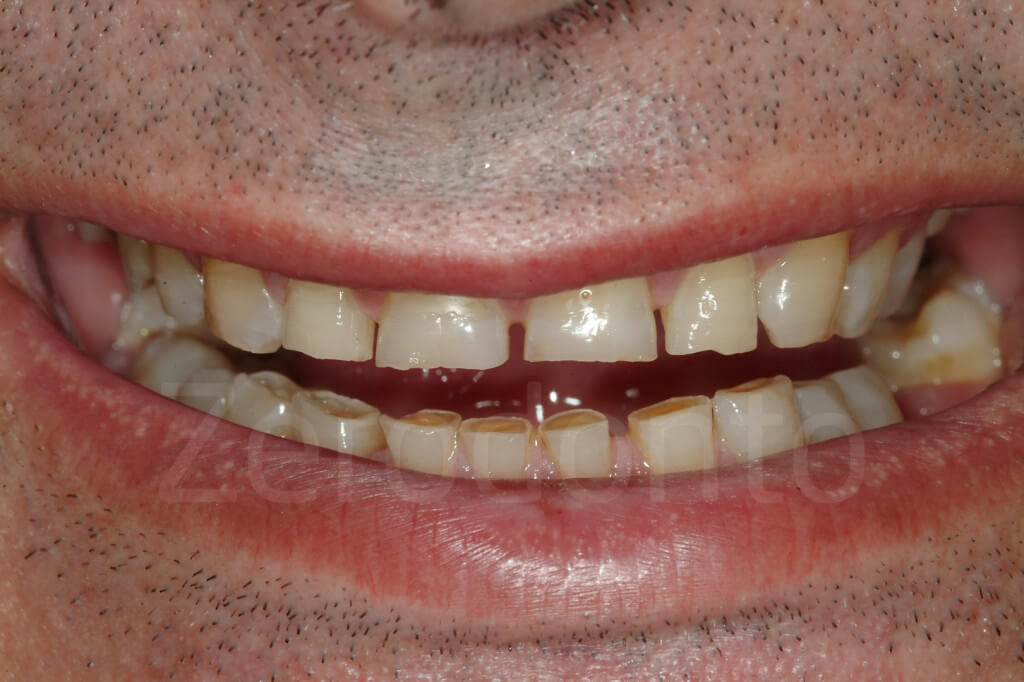 incisal edges are damaged