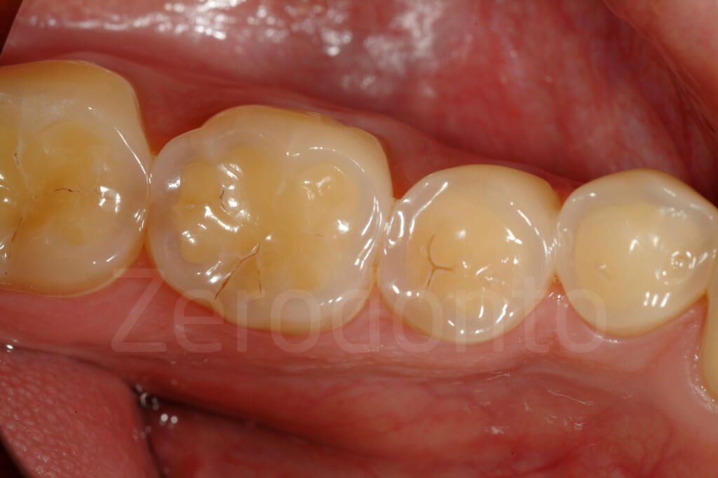 occlusal surfaces