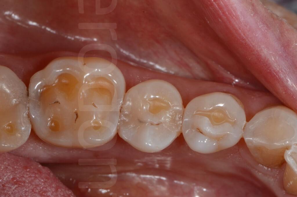 tooth degradation
