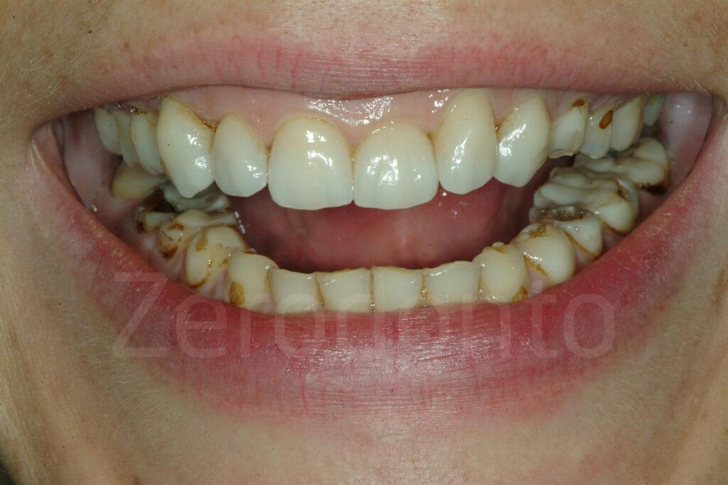 severe dental erosion
