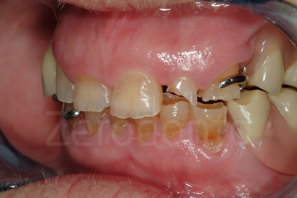 damaged teeth