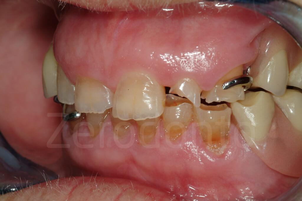 damaged teeth