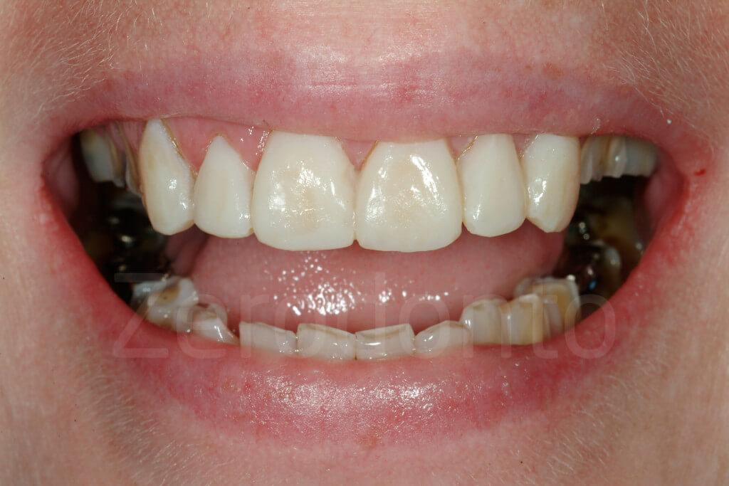 mock-up of 6 teeth