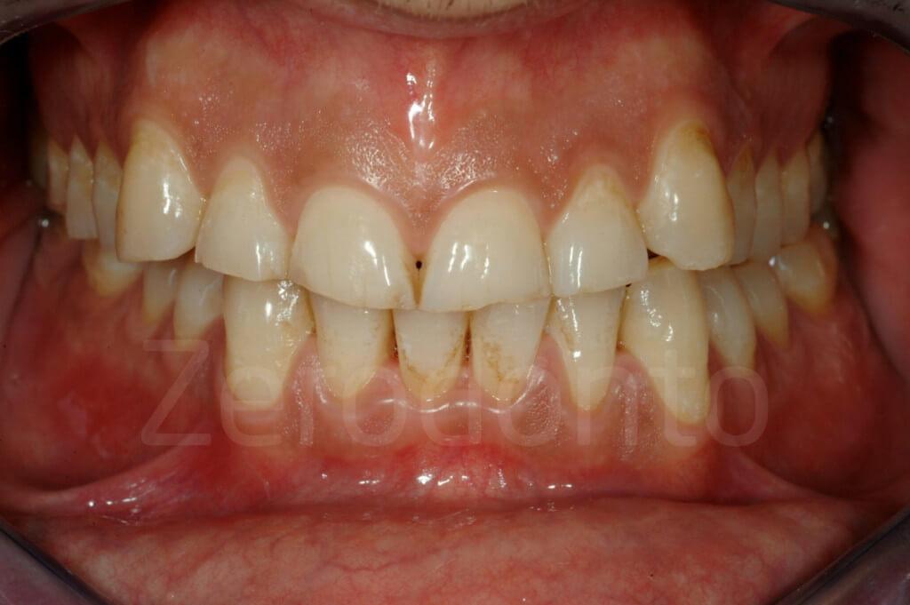 dental wear