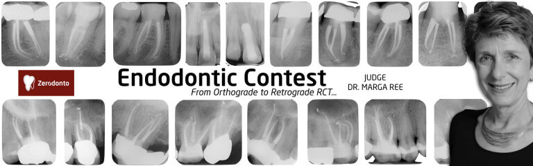 Endodontic Contest - from Retrograde to Orthograde RCT - contest #5, marga ree