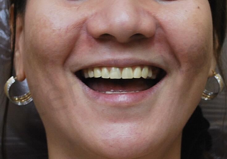 2-pre-op stayplate denture upper & lower