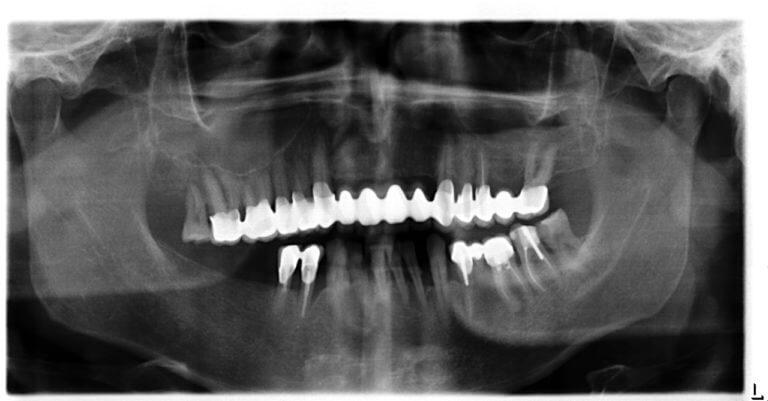 2. After maxilla treatment