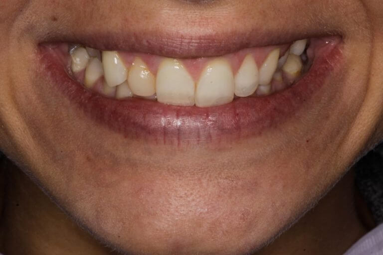 25 after surgical
