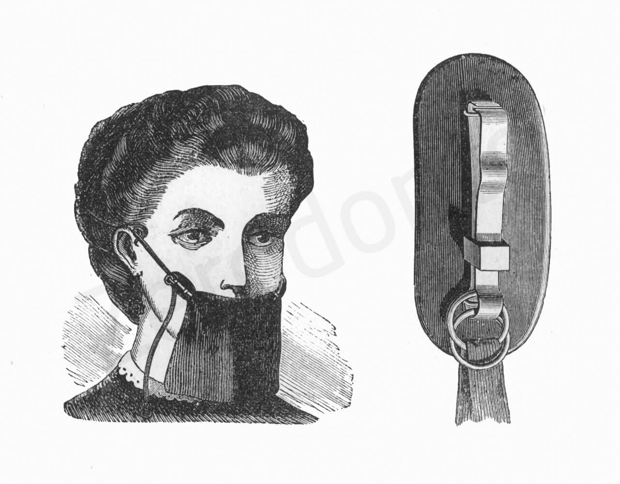 Fig. 14C