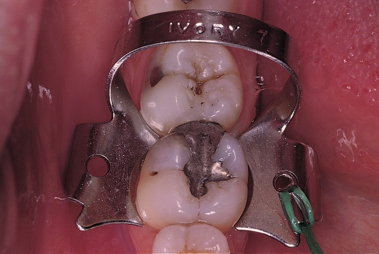 The clamp is positioned around the tooth in such a way that it is stable and does not damage the periodontal tissues. Dental floss has been tied to this clamp for security reasons. If it slipped off during the trial placement, it could be swallowed or aspirated. If it broke while being opened with the rubber dam clamp forceps, the lingual part could easily disappear into the patient's throat.