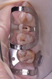 The upper right second premolar has a 45° crown fracture and the 90N clamp keeps sliding under the tension of the rubber sheet. One clamp has been positioned on the second molar and another one (90N) on the second premolar to be treated. Now the elasticity of the dam is pulling on the molar and not at all on the premolar