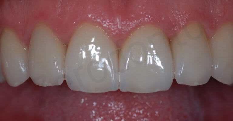 Final (zoom intra-oral )