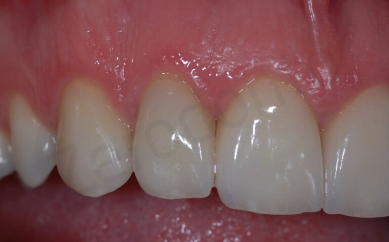 Final (zoom intra-oral right side)