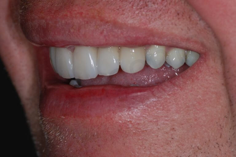 final left side smile