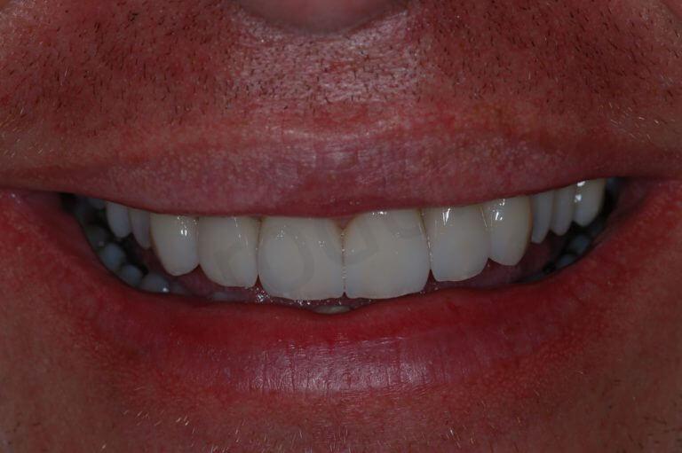 final - smile