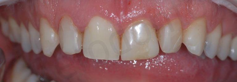 initial intra-oral