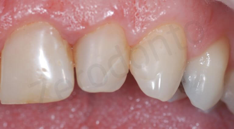 initial left side (zoom intra-oral)
