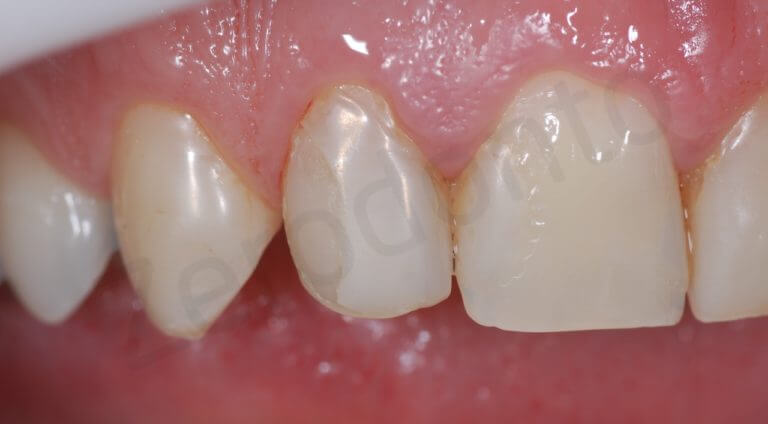 initial right side (zoom intra-oral)