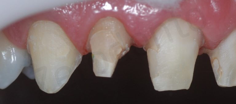 teeth preparation (detail right side intra-oral with black contrast)