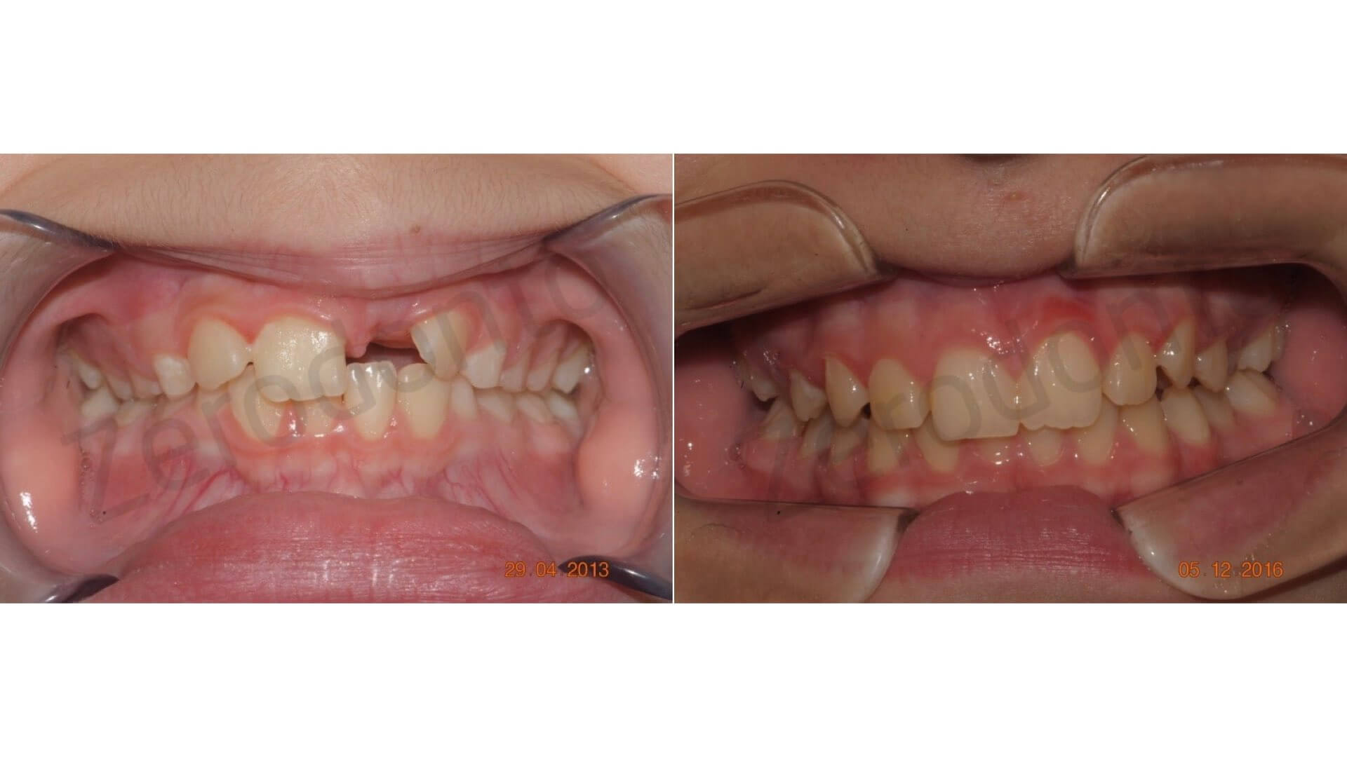 Maxillary functional orthopedics and its potentiality: a clinical case of guided eruption of an upper incisor in bone retention