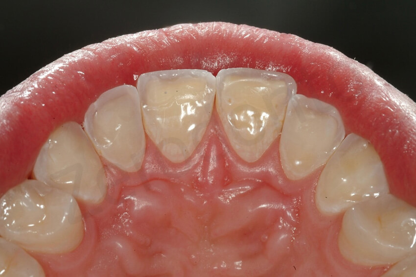 Additive Dentistry And Modified 3 Step Technique