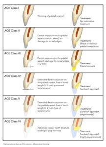 ACE classification
