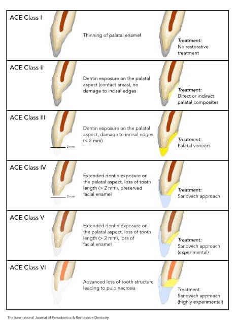 ACE classification