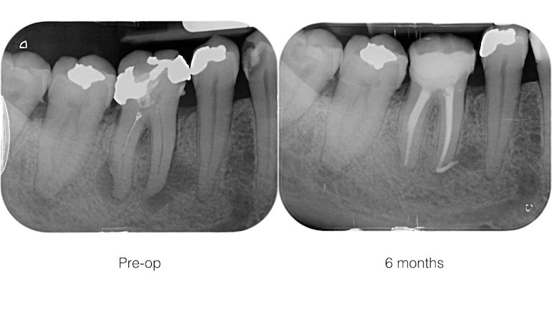 Root canal shaping with latest generation expanding instruments