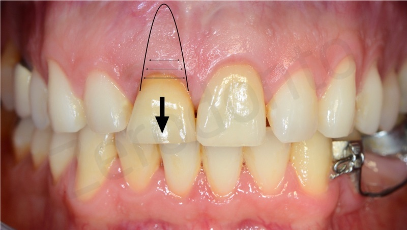 slow orthodontic extrusion