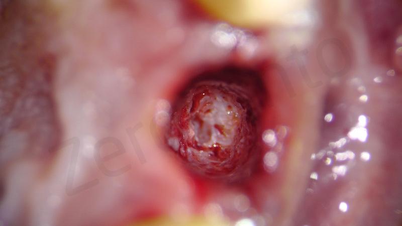 alveolar preservation