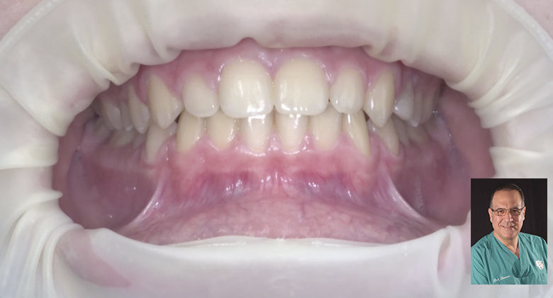 Video recording in dentistry: new protocols for modern