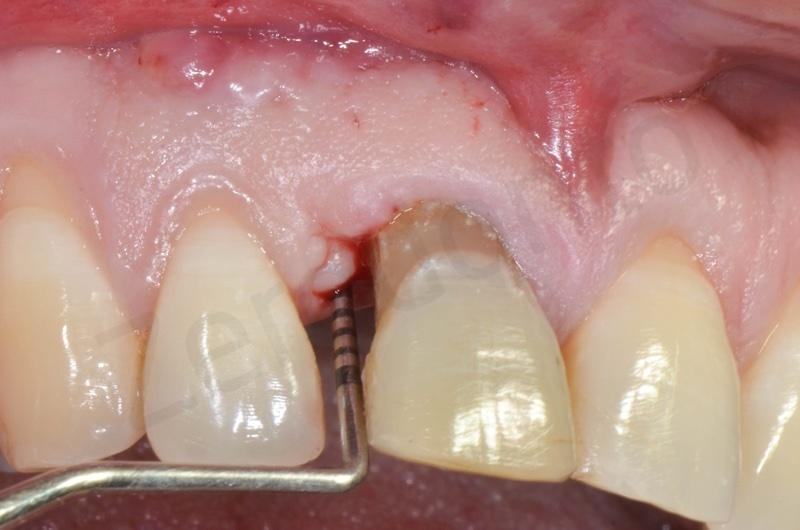 periodontal probing