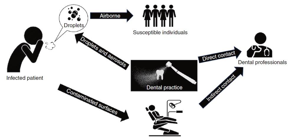covid-19-transmission-dentistry