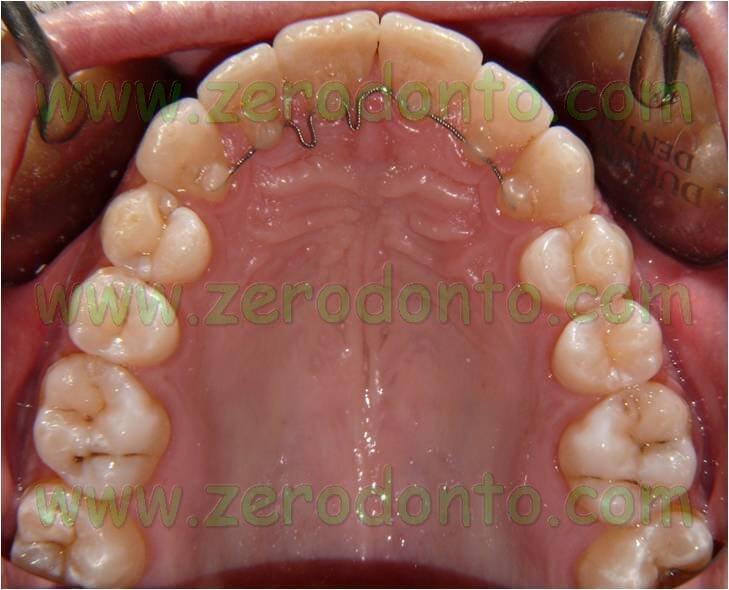 ortodonzia linguale senza attacchi controlli successivi
