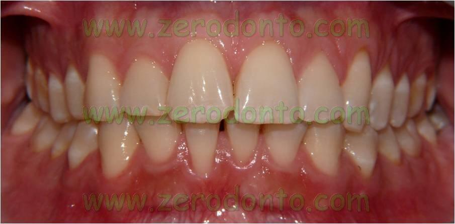 risultati allineamento denti