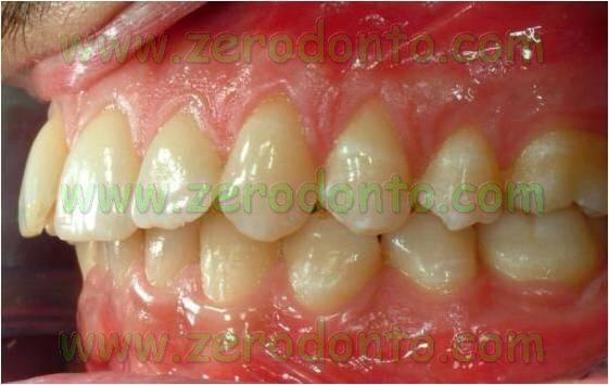 prima classe dentaria