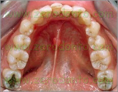 sovrapposizione dentaria