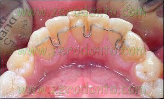 Ortodonzia Invisibile contro Ortodonzia Estetica: Ortodonzia linguale senza attacchi mediante l'utilizzo di retainers preattivati